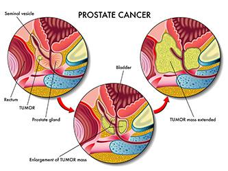 ProstateCancer